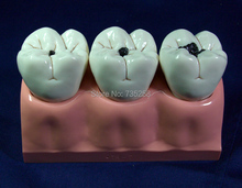 Four Times Magnification Caries Model Caries Pathology Model Dental Model