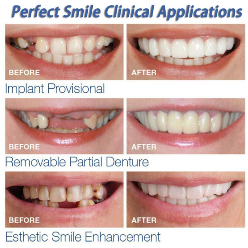 Teeth Whitening Oral Correction Of Teeth For Bad Stain Teeth Give You Perfect Smile Veneers Oral Care  2