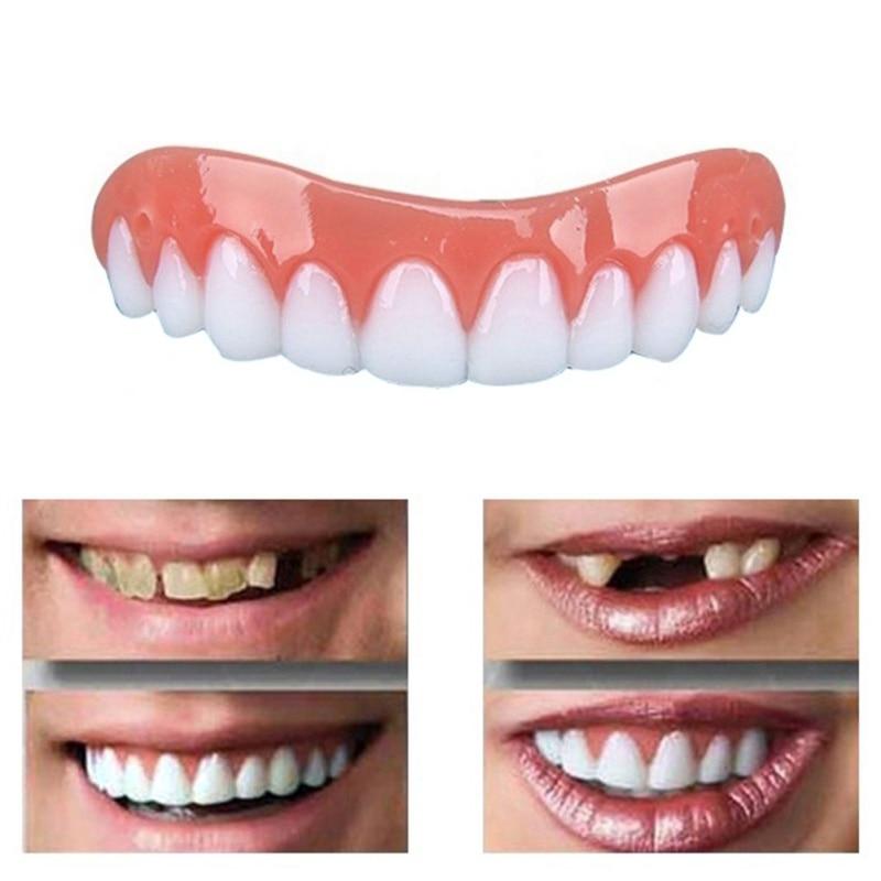 Gigi Pemutih Gigi Palsu Prosthesis Koreksi Senyum Senyum Sempurna
