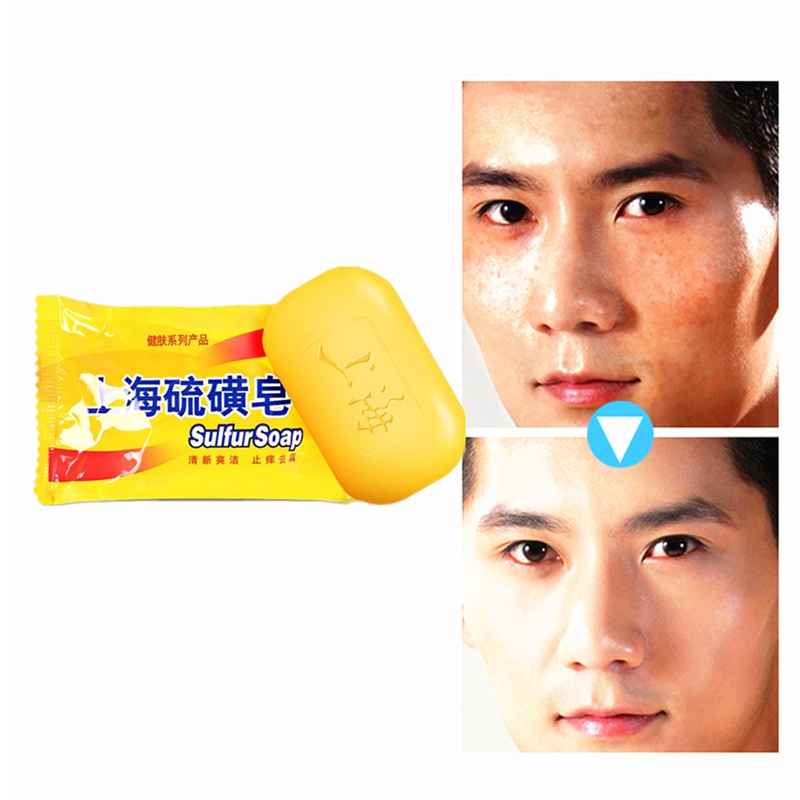 Powerful 85g Shanghai Sulfur Soap High Efficient Anti Itching,dandruff,acne Soap For Skin Care,Bath Soap Bubbles Antifungal