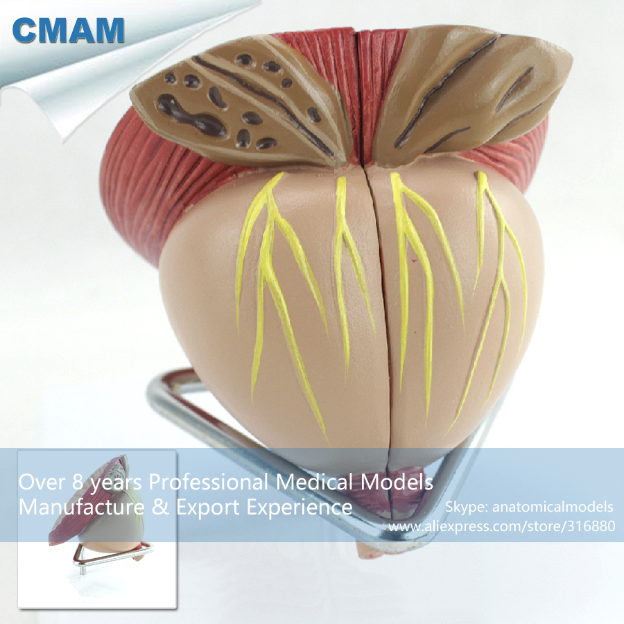 CMAM-UROLOGY11 Prostate Partitioning Model, BPH Examination Comunication, Medical Science Educational Teaching Anatomical Models cmam a29 clinical anatomy model of cat medical science educational teaching anatomical models