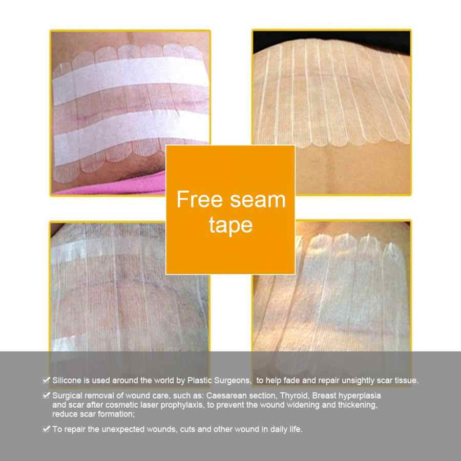 Распродажа стерилизации бесшовные ленты кесарево сечение шрам фиксирующая лента из-за мягкого и лихорадочное покрытие 6*100 мм