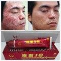 Acné promoción! mejor aligeramiento que blanquea blanqueo de la piel crema quitar las manchas de la piel crema Anti acné antialérgico