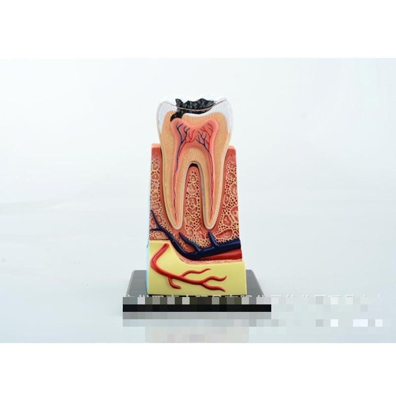Puzzle Master Builder des menschlichen zahn modell kann montiert ...