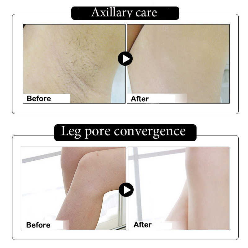 2019 chaud sous les bras blanchiment des aisselles éclaircissant éclaircissant déodorant crème corps crèmes jambes genoux réparation SJ66