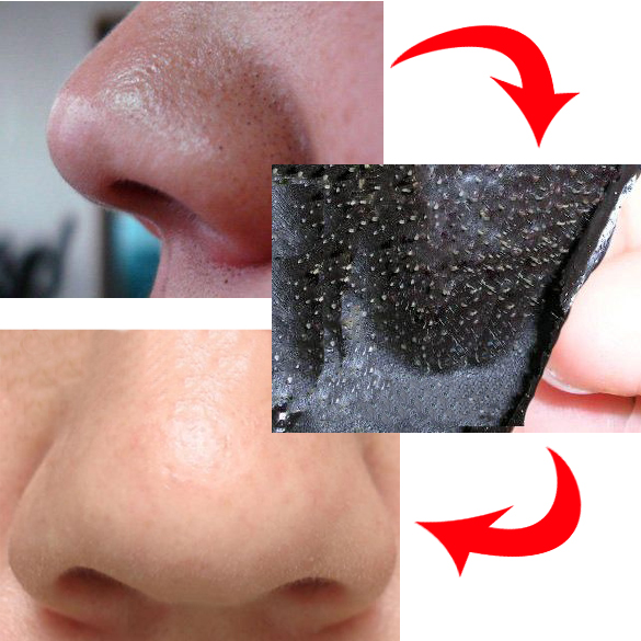 8 best scrubs to remove blackheads on nose - 585×585