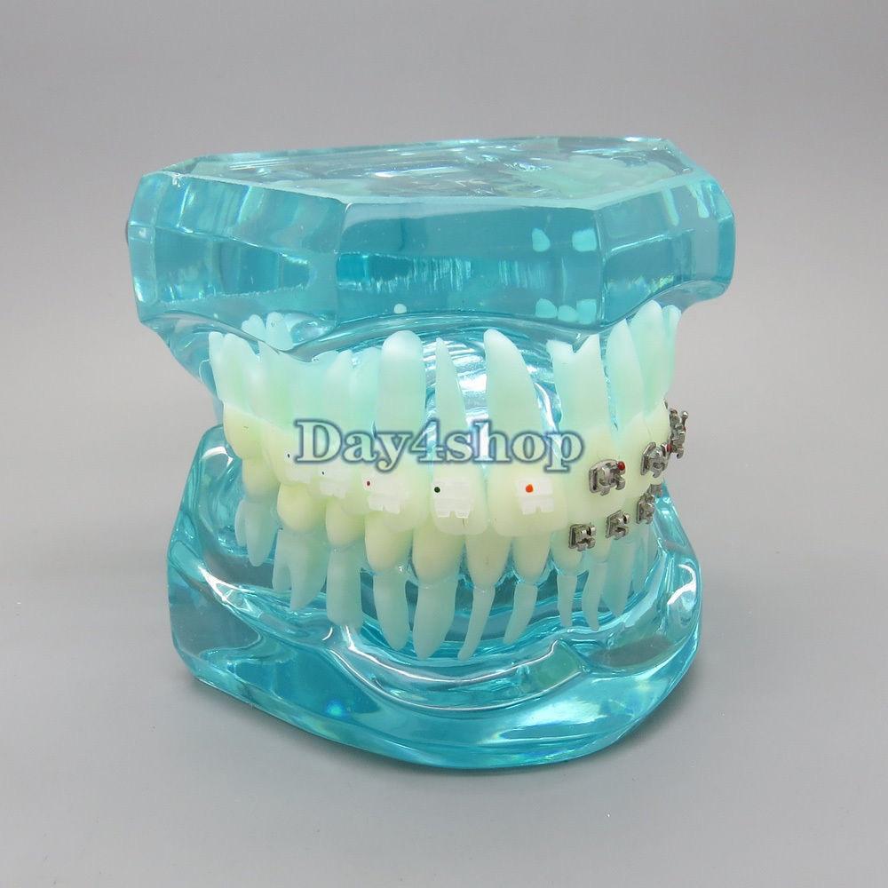 BLUE Dental Orthodontics Communication Model With 4 Types of Brackets marital communication