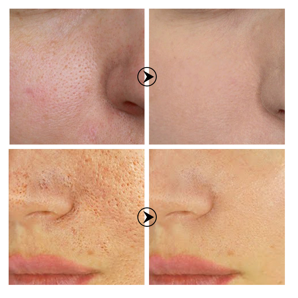BREYLEE Shrink Pores Serum Pore Tightens Refining Moisturizing Essence Whitening Anti-aging Oil Control Facial Essence Skin Care 4