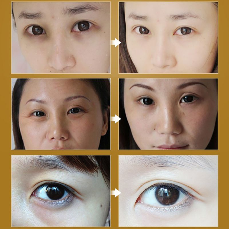 Roll-on Eye Cream Moisturizer Anti-Dark Circle Wrinkle Firming Maquiagem Moisturizing Fashion Make Up Maquillaje Beauty 5