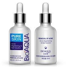 BIOAQUA Acne Scar Removal Cream