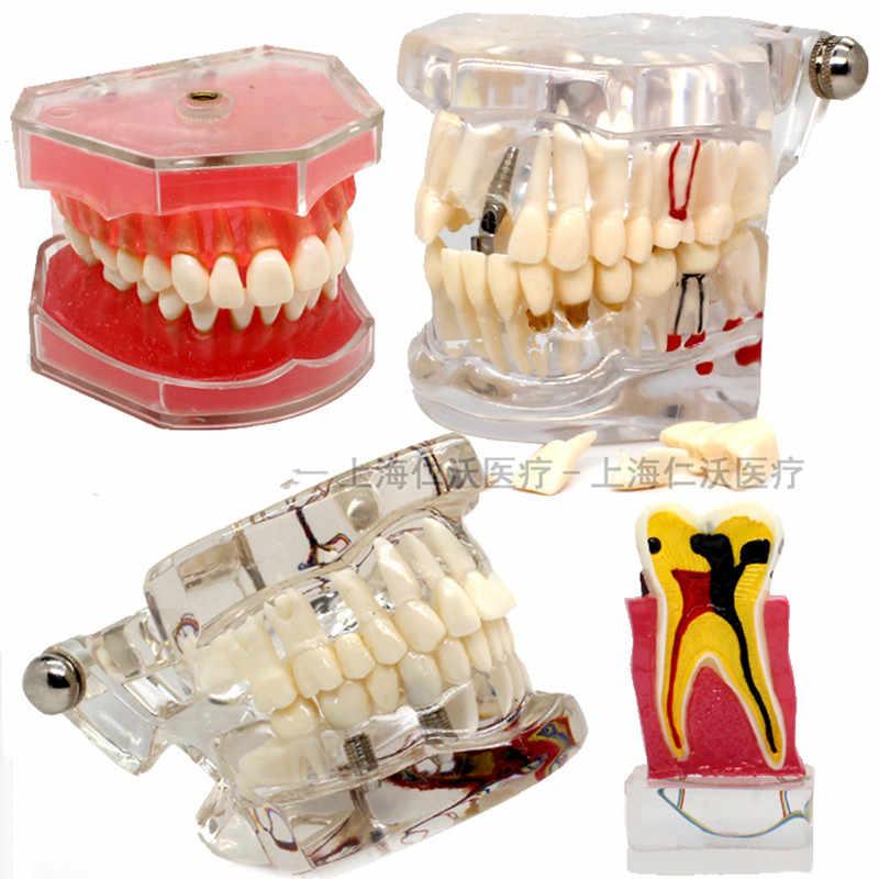 تستخدم نماذج أسنان الأسنان المختلفة للتعليم ومواد طبيب الأسنان في المستشفى