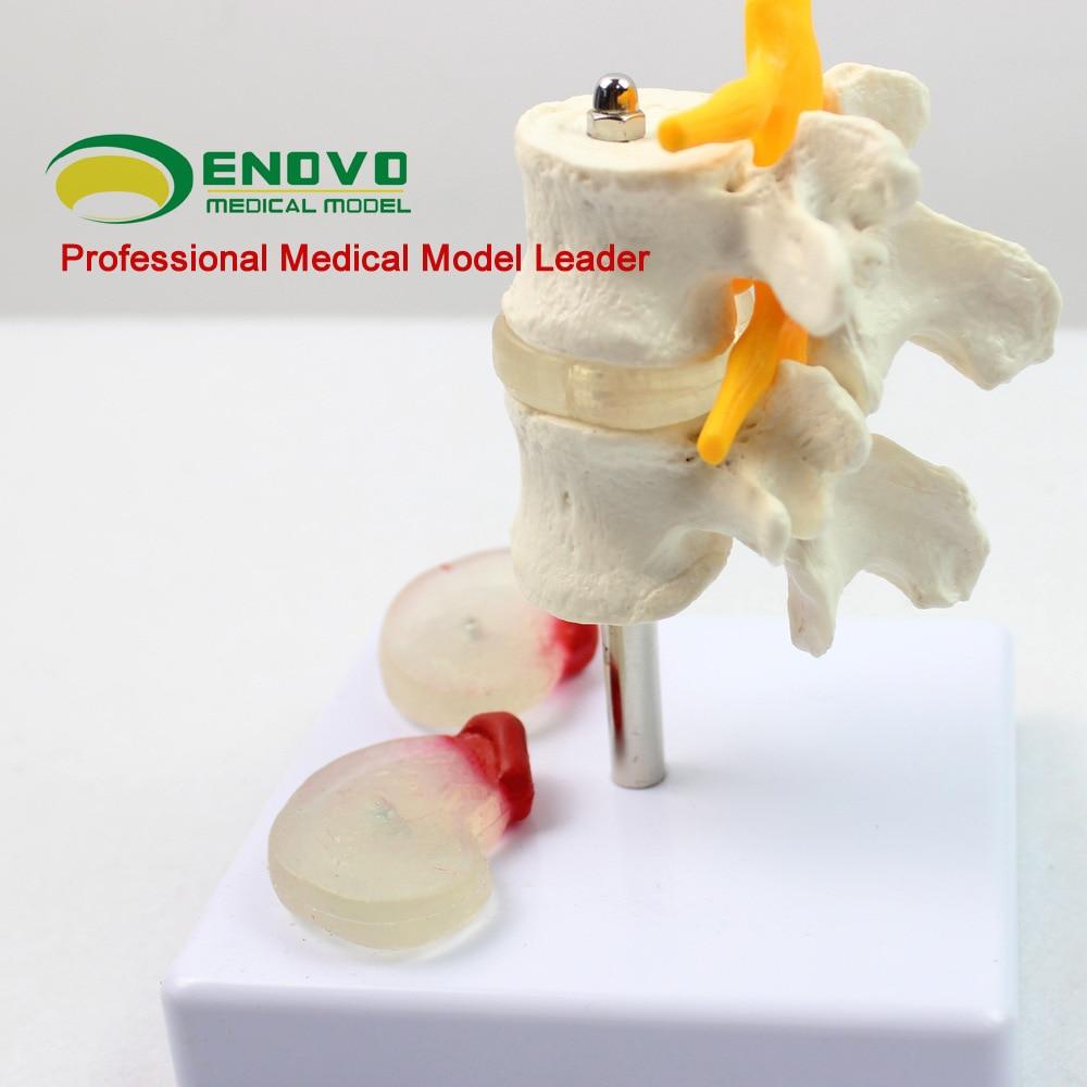 ENOVO Lumbar Lesion Model Human Fourth and Fifth Lumbar Vertebrae Lumbar Lesion Model Medical Teaching Model demonstration model lumbar vertebral spine model pathological vertebrae model quadrilateral lumbar disease model medical art