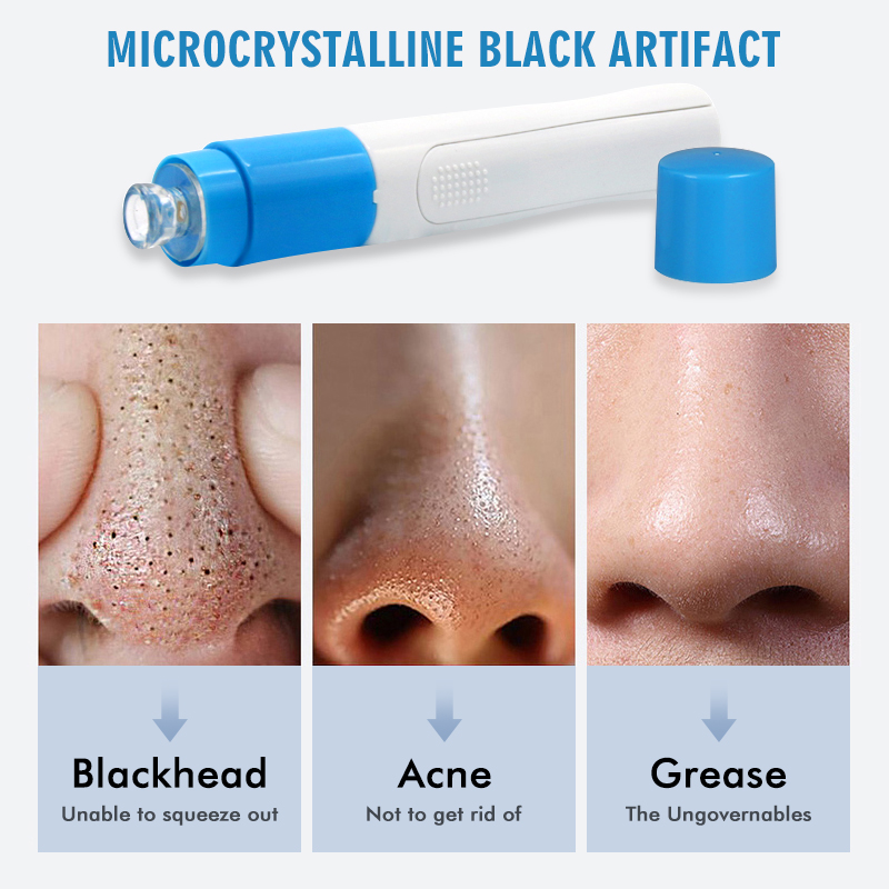 Drop ship Blackhead Remover Vacuum Acne Remover Pore Cleaner Skin Facial Cleanser Kit Exfoliating Cleansing Facial Beauty tool