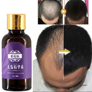 Fast Hair Growth Products Natural With No Side Effects Anti Hair Loss Serum Grow Hair Faster(China)