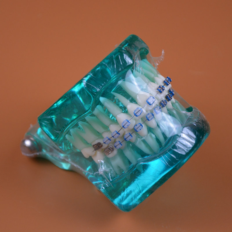 Blue color Orthodontic teeth models dental education model jaws with half ceramic and half metal bracket Teeth and Jaw Models good quality dental orthodontics model teeth model half metal half ceramic brace typodont with arch wire