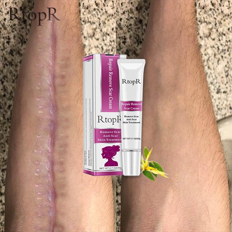 RtopR Remover Cream Acne Scar Stretch Marks Skin Repair Face Cream Acne Spots Acne Treatment Blackhead Whitening Cream Skin Care