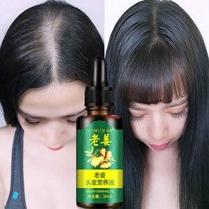 Hair Loss Treatment Ginger Hair Growth Oil For Thicker Healthier Hair Hair Care For Men And Women