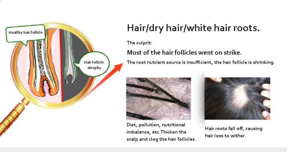 Chinese medicine brewed Natural Hair Care Powerful Nourish Hair Growth  Products Regrowth Essence Treatment Preventing Hair Loss