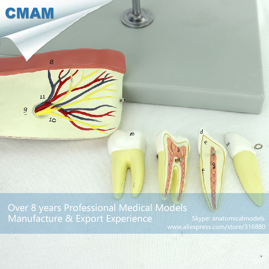 CMAM-DENTAL34 Anatomic Model of Inferior Jaw Bone and Tooth Body,  Medical Science Educational Teaching Anatomical Models simranjeet kaur amaninder singh and pranav gupta surface properties of dental materials under simulated tooth wear