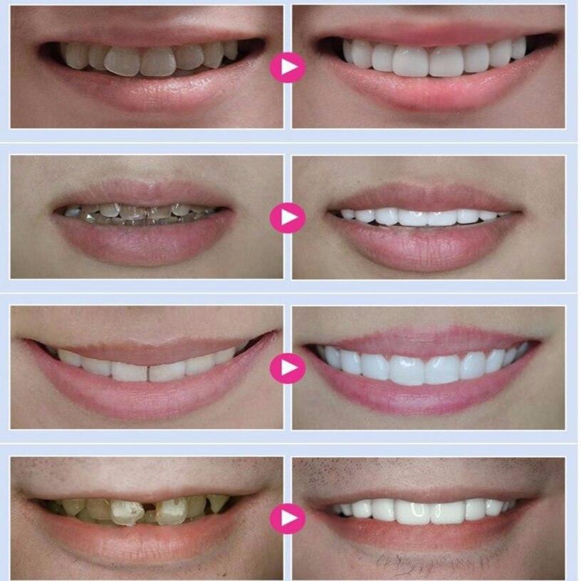 Best Deal  Tooth Whitening Pen White Tooth Cleaning Bleaching Dental Professional Kit Teeth Whitening Gel Pen