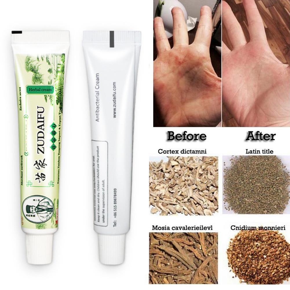 Update 1Pcs 15g Zudaifu Psoriasis Skin Treatment Care Ointment Health Care Cream Protection Dermatitis Eczematoid Eczema Plaster in Patches from Beauty Health