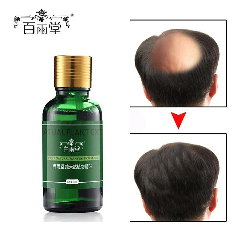 Izdelki za izpadanje las s konjskim oljem Izboljšajo gladko - Nega las in styling - Fotografija 1