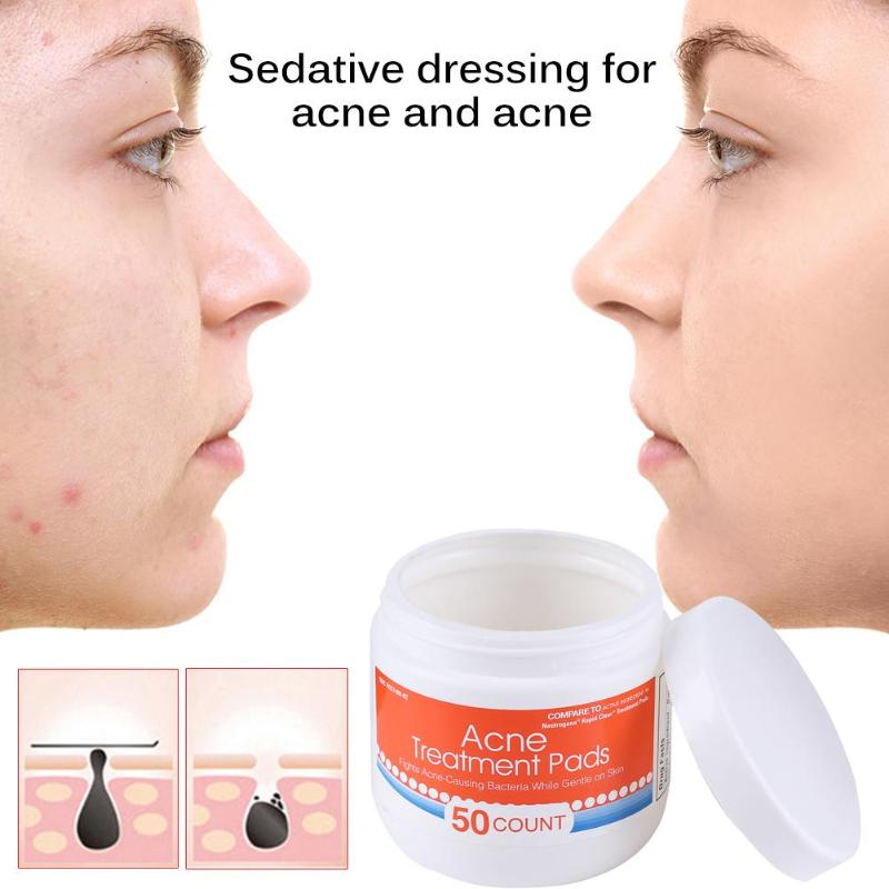 50pcs One Step Acne Pimple Clear Pad Acne Pores Blemish Remove Pad Facial Face Skin Care Acne Treatment Pads