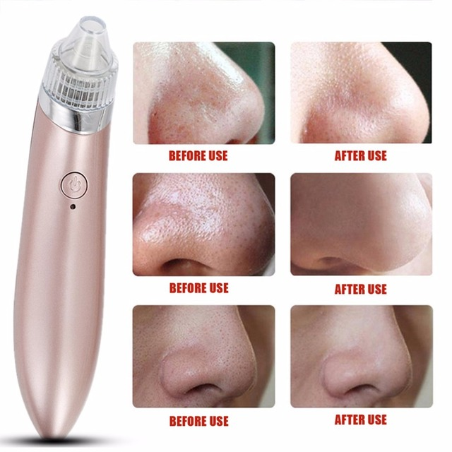 Ultrasonic Vibration Electric Blackhead Extractor Vacuum Suction Remover Vacuum Pore Spot Cleaner Beauty Face Skin Care Tool 2