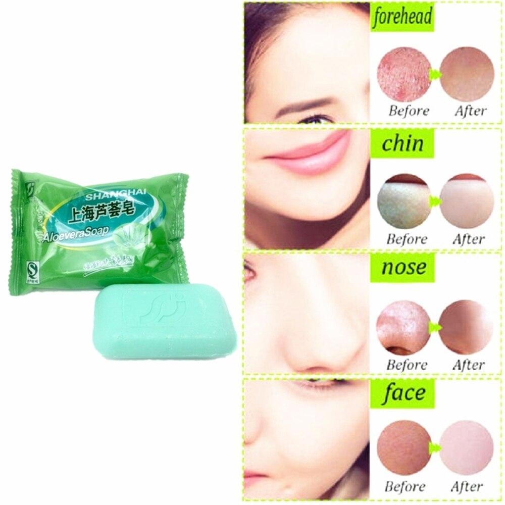 Acne Treatment Moisturizing ALOEVERA Essential Oil Soap Remove Acne Spots Anti Scar Skin Care Soap 85g
