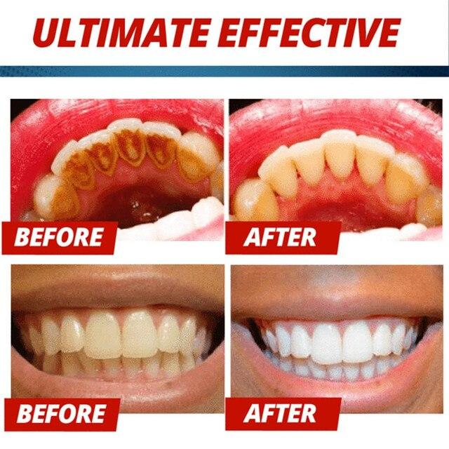 משחת שיניים המסייעת לדימום בחניכיים מנקה ומלבינה  4