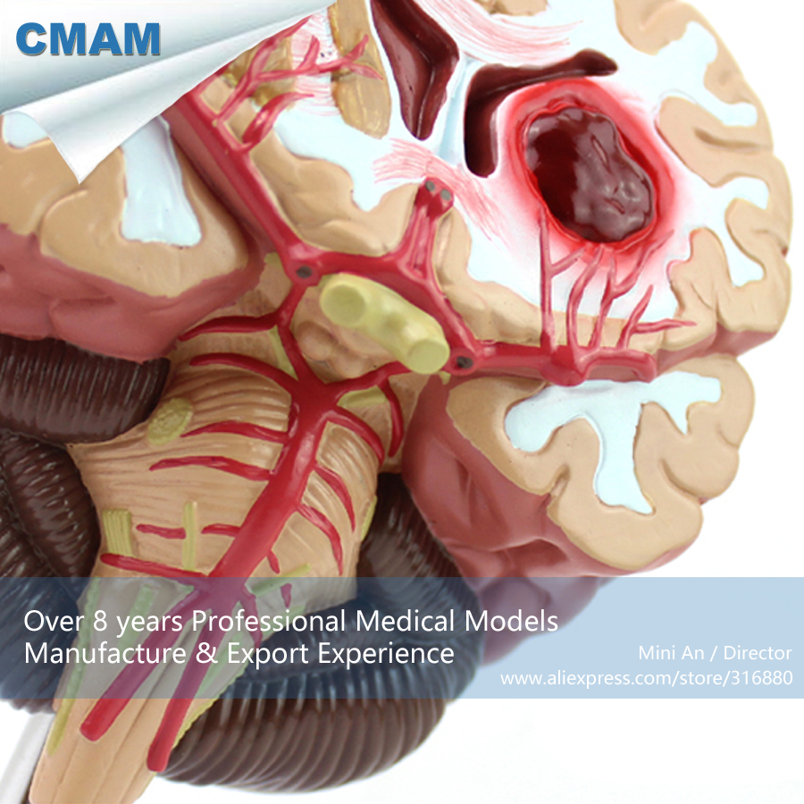 12408 CMAM-BRAIN10 Human Anatomy Disease of the Brain Teach Model, Medical Science Educational Teaching Anatomical Models