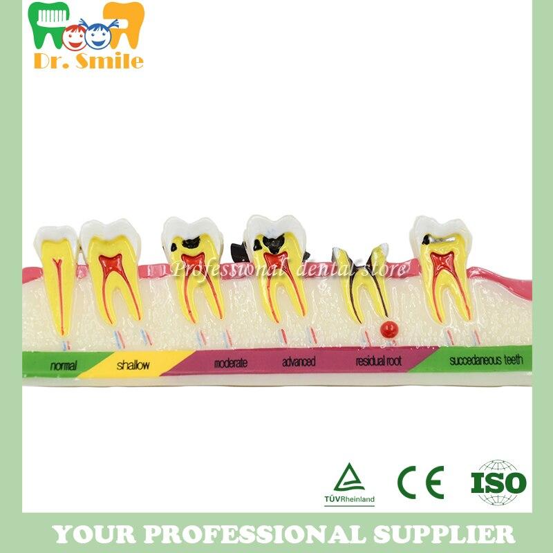La carie dentaire développant la démonstration de modèle de dent d'illustéation enseigne le Patient