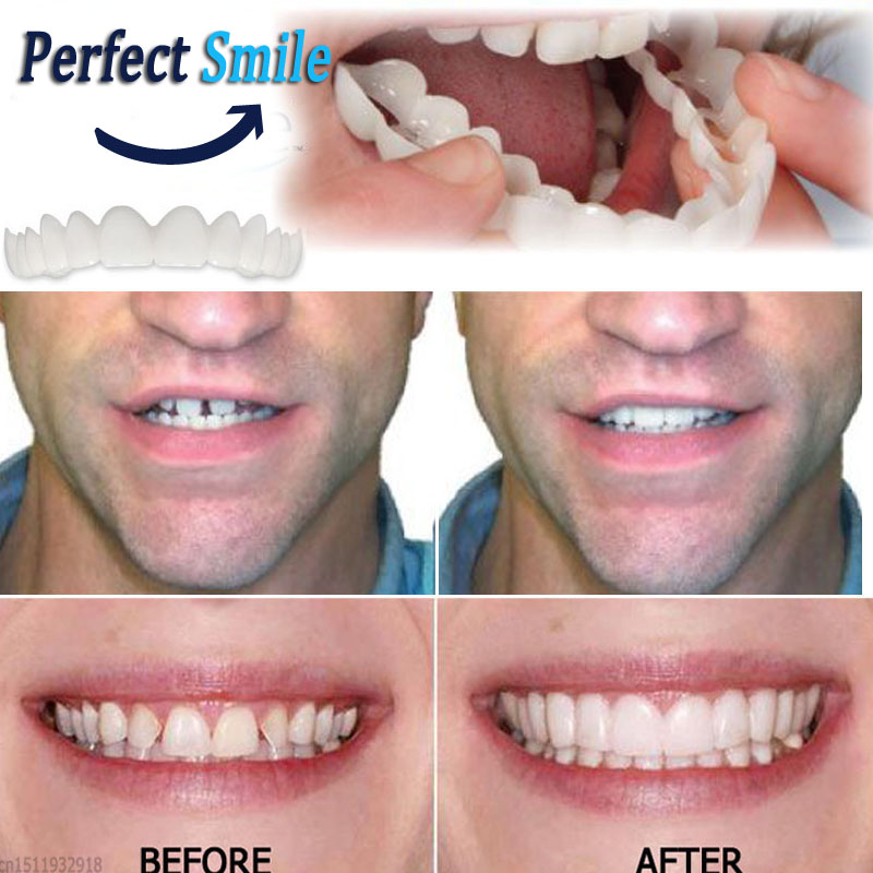 Snap On Teeth Care Cosmetic Secure Instant Natural Upper Veneer Dental False Tooth Perfect Smile Veneers Teeth Whitening