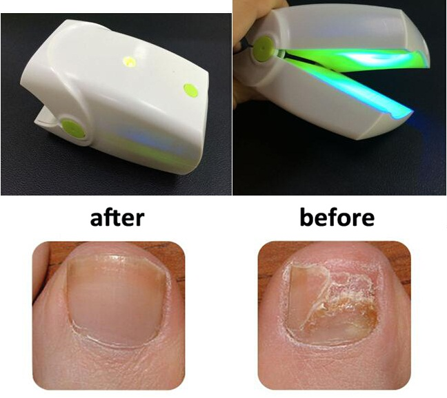 905nm 470nm Nail Fungus Onychomycosis laser Treatment Instrument Anti-Fungal laser device leuconychia ringworm of the nail LLLT rameshbabu surapu pandi srinivas and rakesh kumar singh biological control of nematodes by fungus nematoctonus robustus