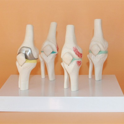 Knee Disease Model Orthopedics Teaching Medical Teaching Model Free Shipping