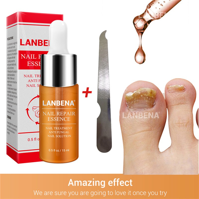 Foot Nail Care Treatment Bright Fungal Nail Repair Onychomycosis Removal Essence Foot Care Anti Infection s5 image
