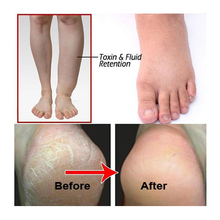 New Hot Ginger Effervescent Tablets Foot Bath Anti-swelling SPA Massage Pedicure Care Dropshipping For Feet