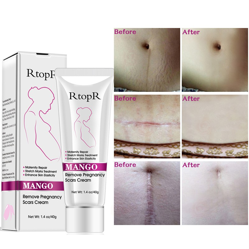 Stretch Mark Cream For Pregnancy Repair Scar Slack Line Abdomen Stretch Marks Cream Skin Care in Maternity from Beauty Health