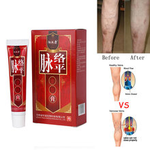 ≤No box) китайский медицинский пластырь для лечения варикозного расширения вен крем для васкулита флебита вен мазь для снятия болевых ощущений большая трубка 30 г