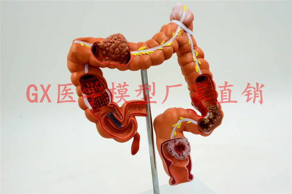human rectum colon Pathological model the large intestine anus Medical teaching Anatomy model free shipping