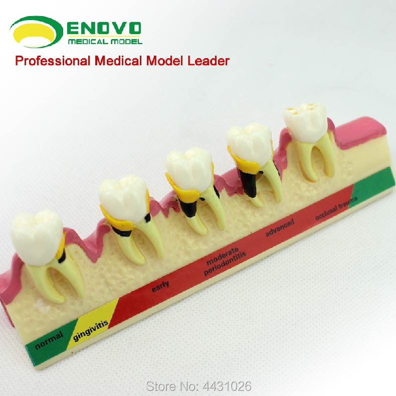 ENOVO Oral periodontal disease classification model gingivitis degree chronic periodontitis dentist communication resin oral periodontal disease classification model gingivitis degree chronic periodontitis model