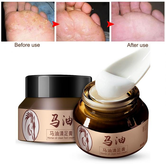 18 Horse Oil Feet Cream for Athlete Feet Itch Blisters Anti-chapping Peeling Antibacterial Ointment 3