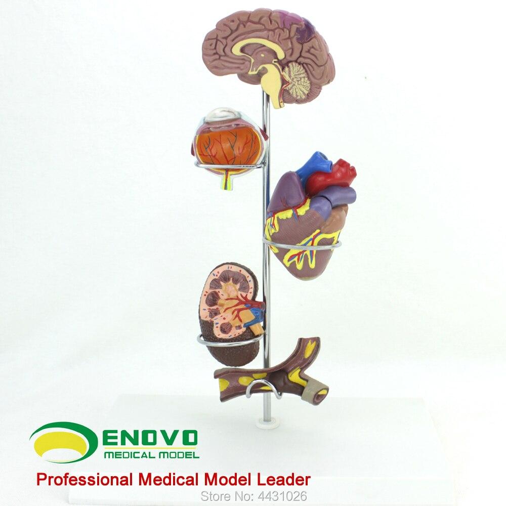 ENOVO Human hypertensive model hypertensive cerebrovascular medicine general surgeons giftENOVO Human hypertensive model hypertensive cerebrovascular medicine general surgeons gift