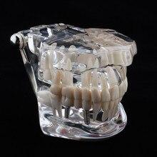 Practical New 1 X Dental Implant Disease Teeth Model with Restoration Bridge Tooth Dentist for Medical Science Teaching