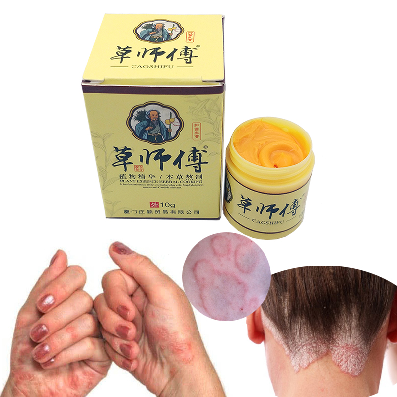 Natural Skin Care Psoriasis Dermatitis Itching Repair Body Eczema Antibacterial Cream Allergic Neurodermatitis Ointment(China)