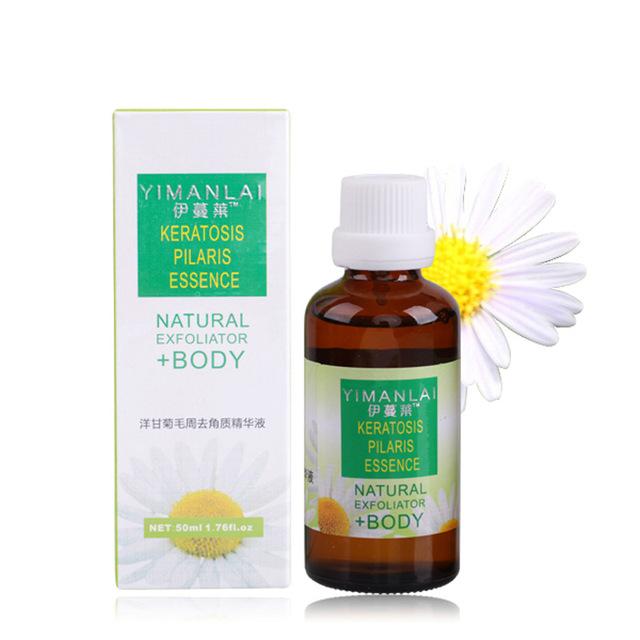 Exfoliante esencia de aceite Esencial de reparación de aceite de la piel de aceite de la piel suave-Eliminar la córnea de la piel esencia 50 ml