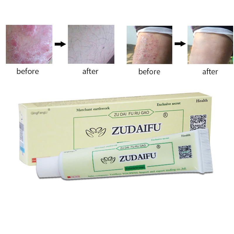 Eczema Psoriasis Treatment Beli Murah Eczema Psoriasis: Dropshipping Zudaifu Skin Psoriasis Cream Dermatitis
