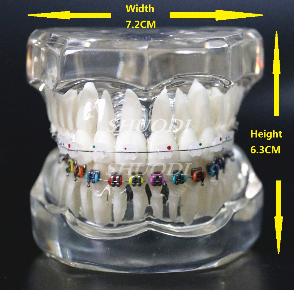 Dental Orthodontic Model Patients Communication 2 kinds Brackets ...