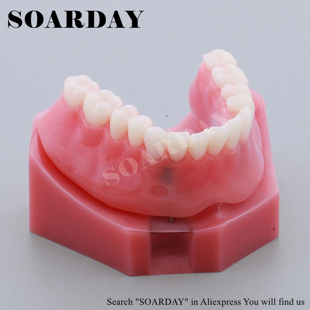 Modèle d'implant de restauration démonstration d'enseignement Oral modèle de prothèse dentaire rouge de Communication de dentiste