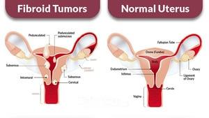 Image 4 - 40 個/2 パックハーブ女性fibroid茶ナチュラルソリューション子宮fibroid抗炎症縮小fibroid健康ティーバッグ